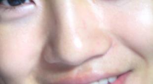 蒜头鼻整形的方法