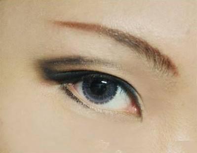 韩式三点双眼皮能保持多久