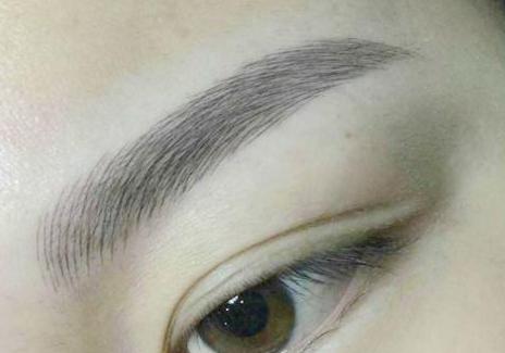 眉位不正修复后的护理