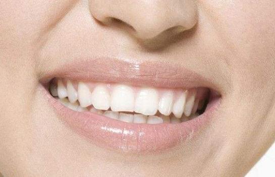 牙齿瓷贴面优势