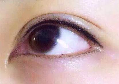 外切去眼袋手术需要多少钱