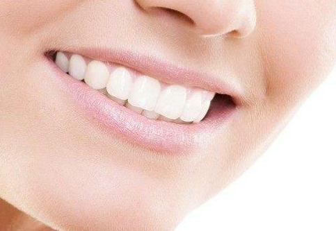 牙齿瓷贴面能维持多久