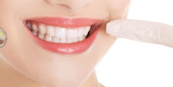虎牙矫正贵吗