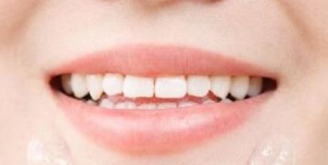 牙齿矫正哪里便宜