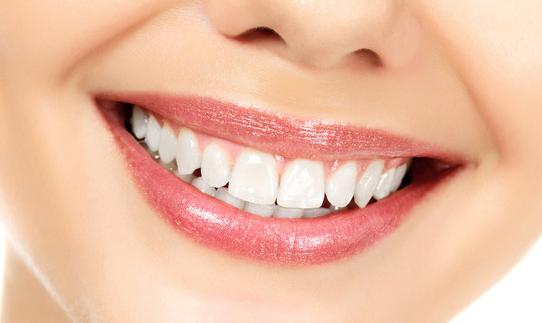 什么是牙齿瓷贴面