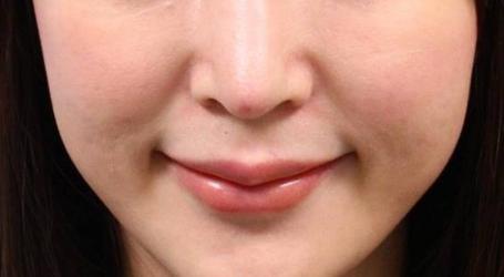缩小鼻子的手术多少钱