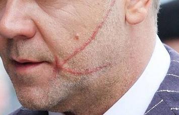 燒傷疤痕修復手術多少錢