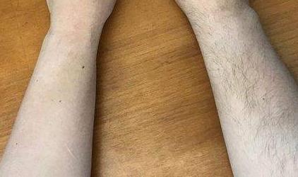 小臂脫毛多少錢