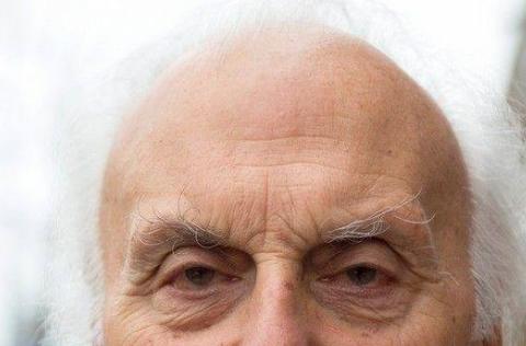 秃头如何种植头发