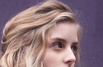 发际线高植发靠谱吗