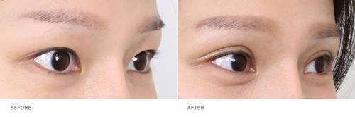 做微创双眼皮的流程是什么?恢复时间要多久?
