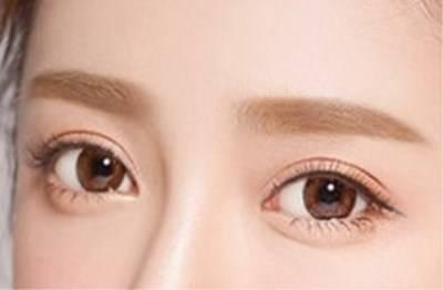 内双眼皮图片