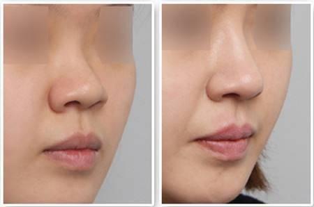 宝尼达玻尿酸隆鼻效果可以持续多久