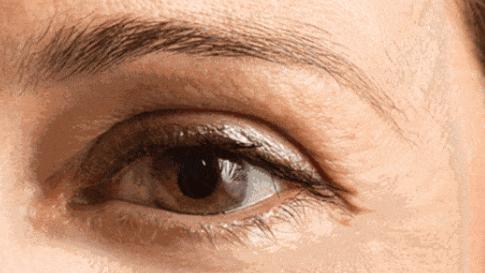 热玛吉眼部有什么效果