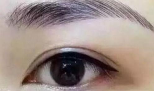 北京提眉手术需要多少钱