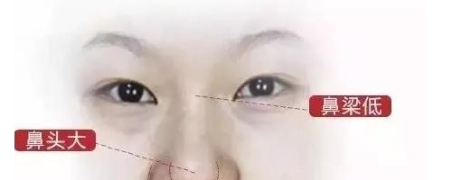 上海九院鼻综合整形手术效果好不好