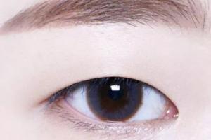 单眼皮割完双眼皮会显老?