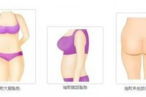 自体脂肪面部填充全过程 自体脂肪面部填充三步骤