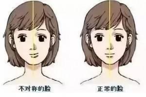 脸型不好,谁说只能做微整形?矫正对脸型的改变超乎你想象!