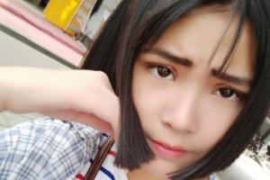 北京八大处刘刘暾双眼皮手术案例分享与效果对比图