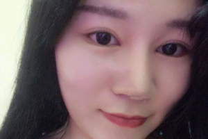 广州海峡整形郭栋开眼角手术案例分享与效果对比图