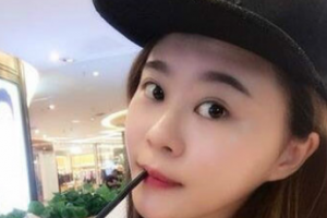 广州海峡医疗美容门诊部.王玉燕除皱手术整形效果好不好及案例展示