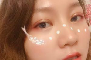 广州海峡医疗美容门诊部.李希军双眼皮整形案例分享与效果对比图