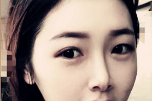 广州美莱医疗美容王溪涛祛斑案例分享与效果对比图