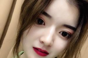 广州美莱医疗美容王溪涛双眼皮手术整形效果好不好及案例展示
