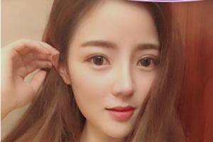 广州美莱医疗美容张毓隆鼻案例分享与效果对比图