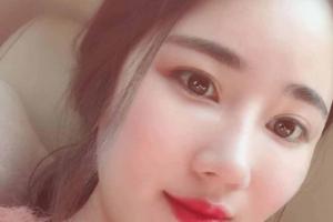 广州美莱医疗美容罗延平假体隆鼻案例分享与效果对比图