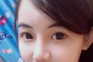 北京八大处整形外科医院宗宪磊价格表 打瘦脸针效果附案例展示