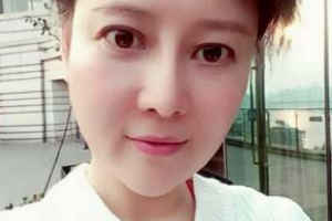 上海九院整形科脸部抗衰多少钱?面部年轻化线雕手术案例