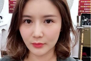 石家庄省二院整形科价目表倾情分享,附注射瘦脸案例恢复过程