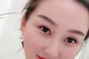 上海九院整形科价目表2021 玻尿酸注射全脸案例