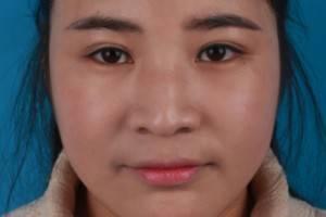 广州的贾小姐在中山三医院做完3D智能全面部轮廓术+颧骨内变精致V脸