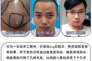 广西武警总队医院植发中心植发怎么样附全新植发价格表(价目表)