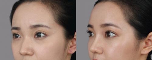 鼻头太大不自信,鼻头缩小手术后的照片对比惊艳!速来围观