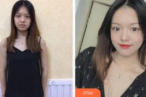 杭州艺星医疗美容门诊部万连壮整形价格表附隆胸手术案例展示