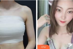 杭州艺星医学美容医院万连壮整形价格表附假体隆胸案例展示