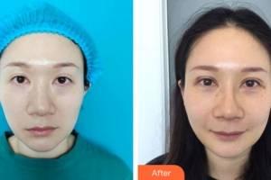 大同三医院整形美容科赵振河整形价格表附双眼皮手术案例展示