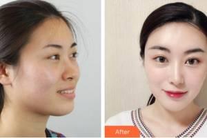 大同清木整形美容诊所宋莹洁整形价格表附皮肤美容案例展示