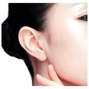 耳疙瘩修复