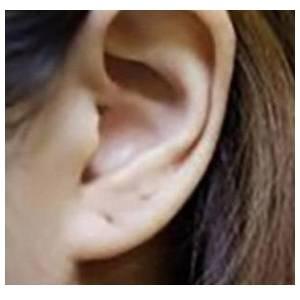 耳组织整形
