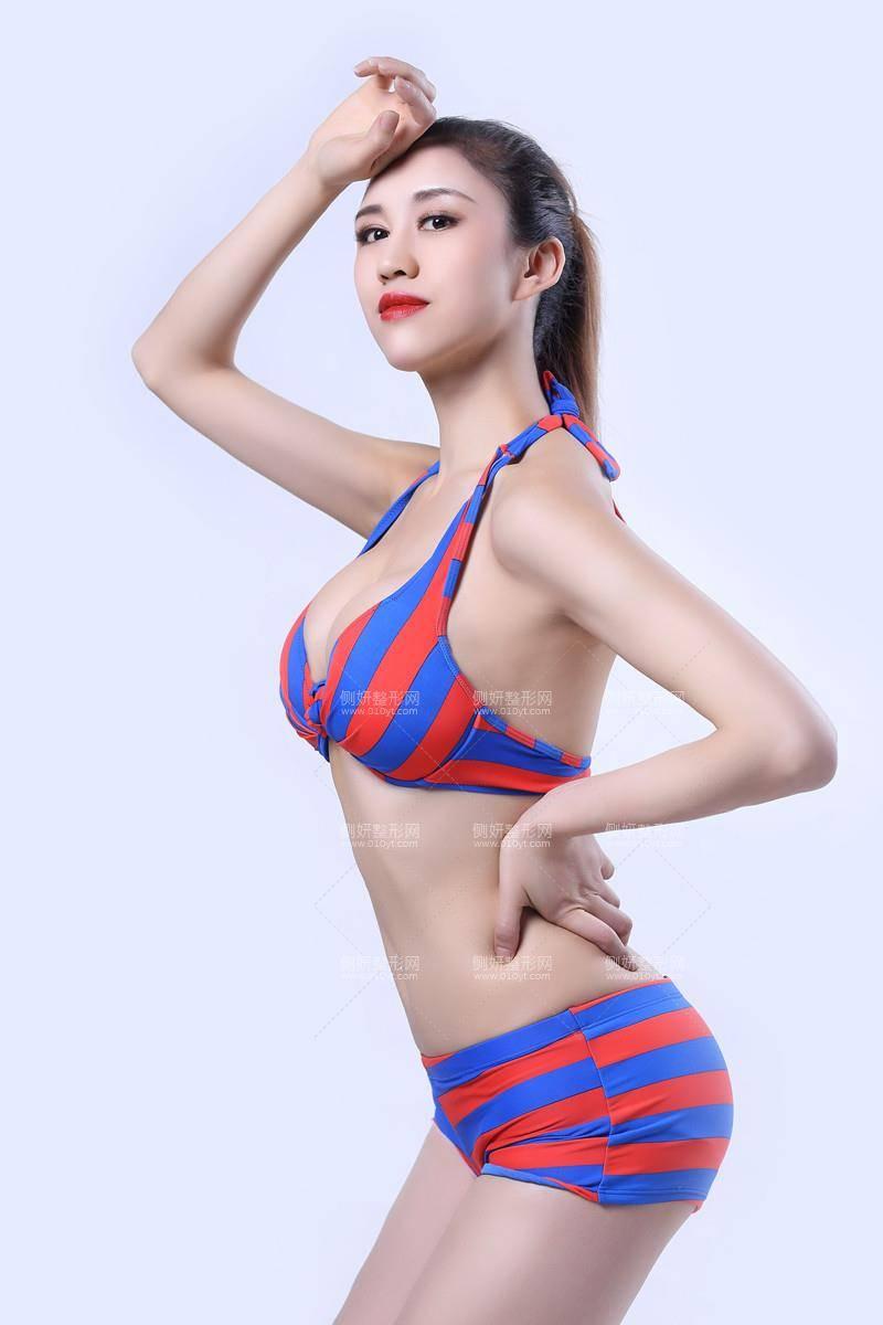 宜昌博美医疗美容诊所假体丰胸全过程分享附收费明细