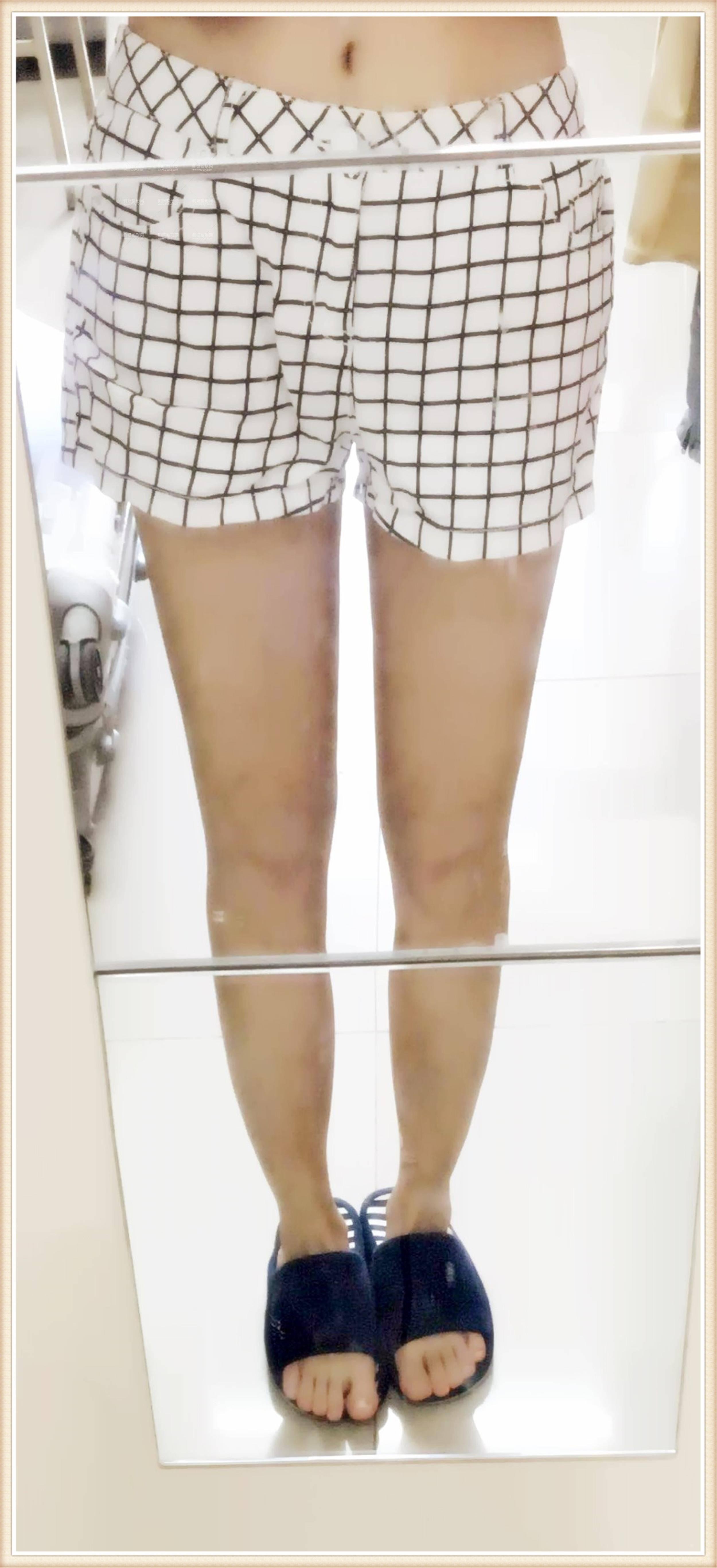 运城丽霞医疗整形美容诊所吸脂瘦腿专家_案例反馈