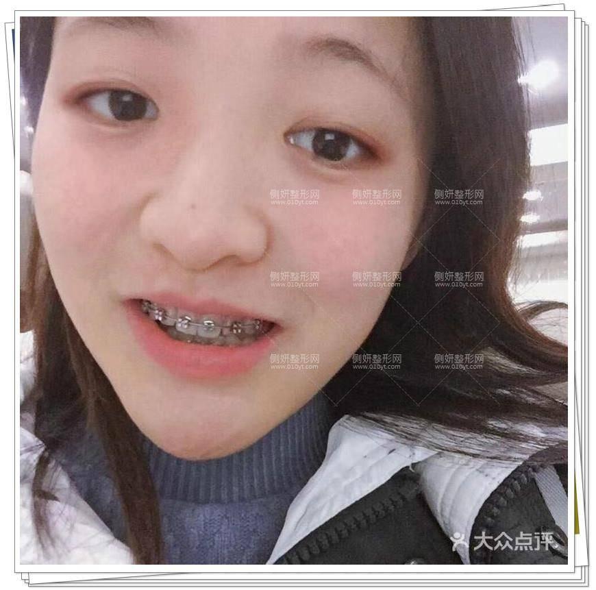 新疆医科大学附属医院口腔科牙齿正畸医生专家|案例