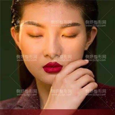 云南曲靖华美美莱整形医院鼻综合术前术后照片
