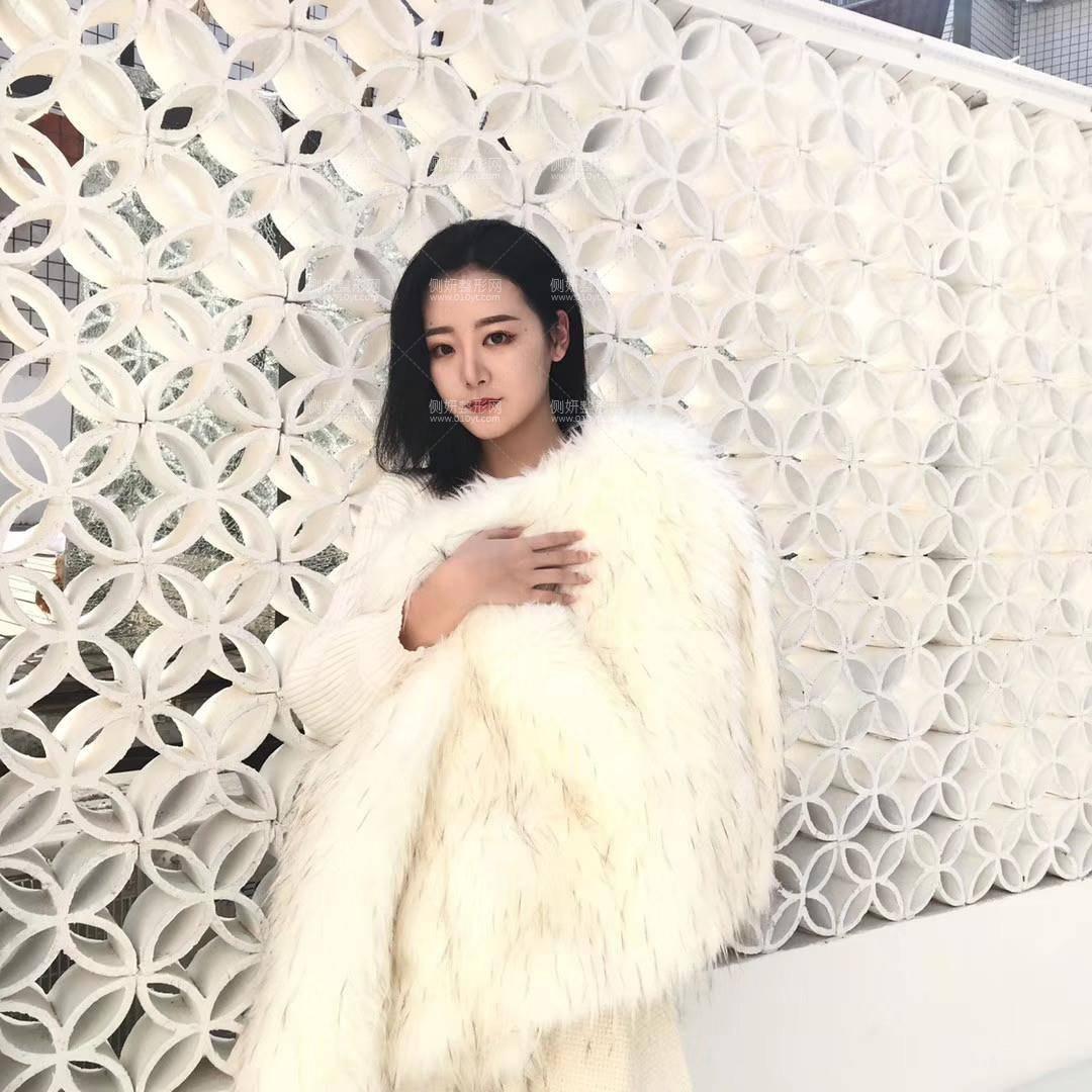 北京亚奇龙医疗美容医院隆鼻费用专家介绍/成功案例照片