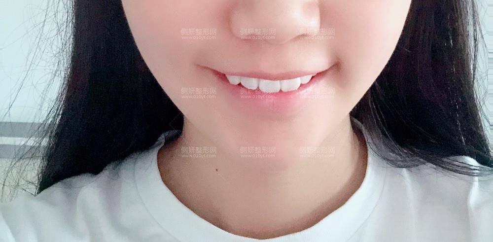 上海第九人民医院整形美容价格一览表,脸部吸脂干货分享+医生